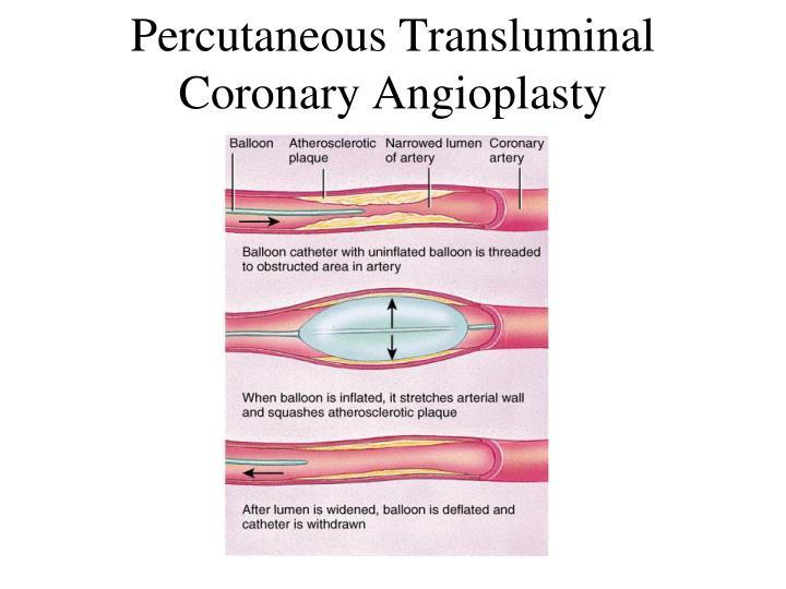Percutaneous Transluminal Coronary Angioplasty
