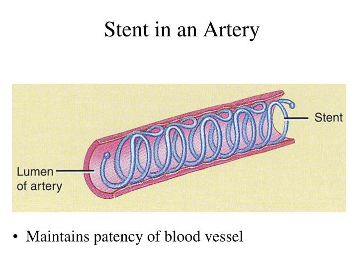 Stent in an Artery