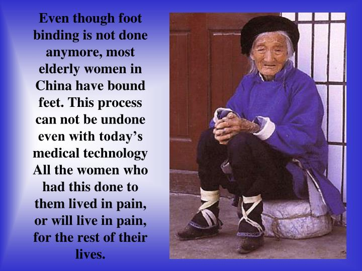 Even though foot binding is not done anymore, most elderly women in China have bound feet. This process can not be undone even with todays medical technology All the women who had this done to them lived in pain, or will live in pain, for the rest of their lives.