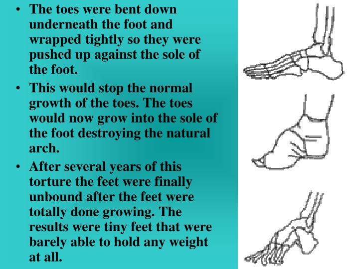 The toes were bent down underneath the foot and wrapped tightly so they were pushed up against the s...
