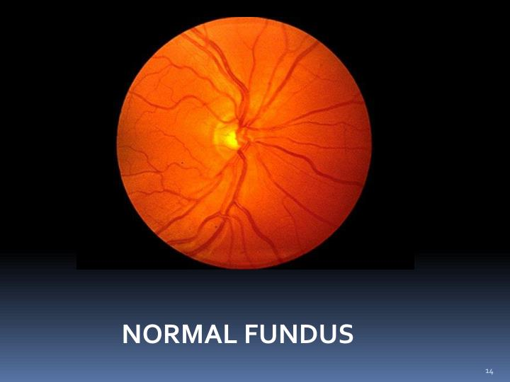 NORMAL FUNDUS