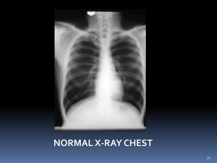 NORMAL X-RAY CHEST