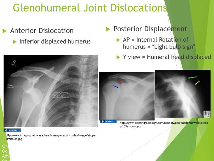 PPT - Orthopedics Injury PowerPoint Presentation - ID:6134100