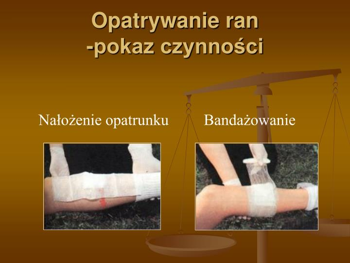 Opatrywanie ran