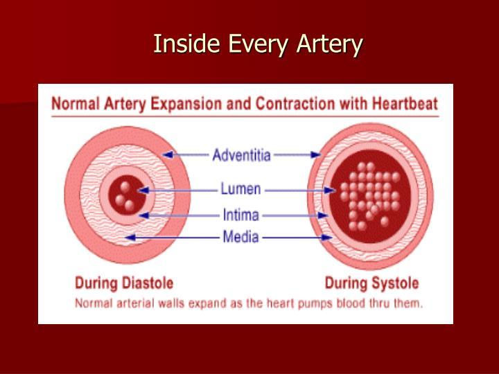 Inside Every Artery
