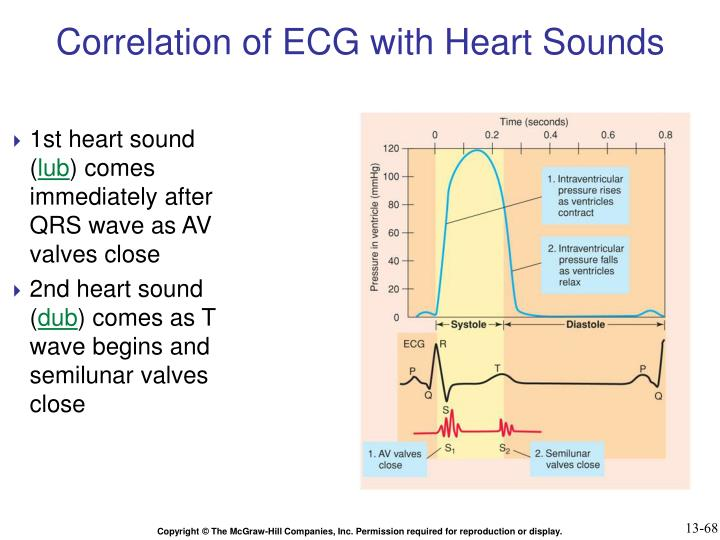 Correlation of ECG with Heart Sounds