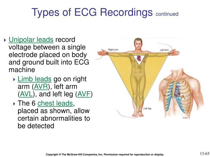 Types of ECG Recordings