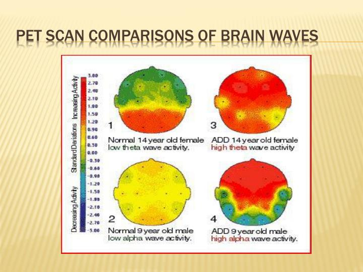 Pet scan comparisons of brain waves