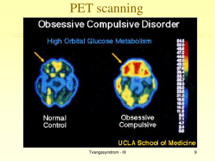 PET scanning