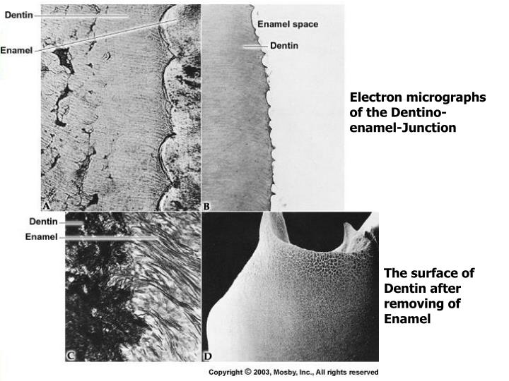 Electron micrographs of the Dentino-enamel-Junction
