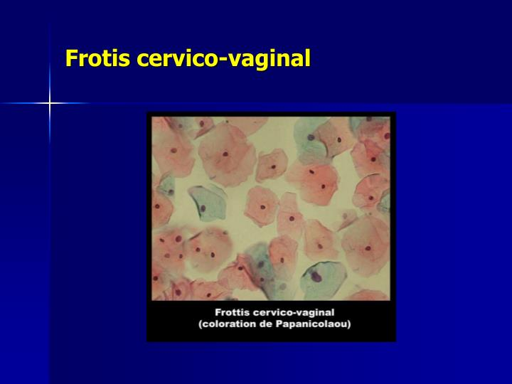 Frotis cervico-vaginal