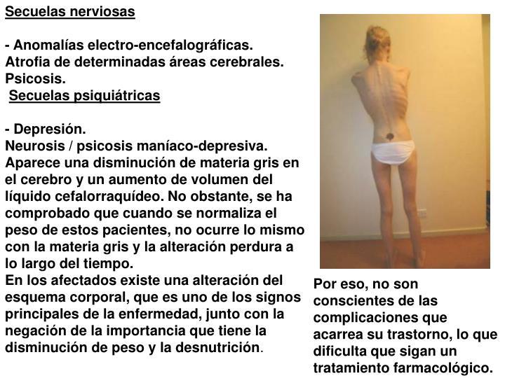 Secuelas nerviosas