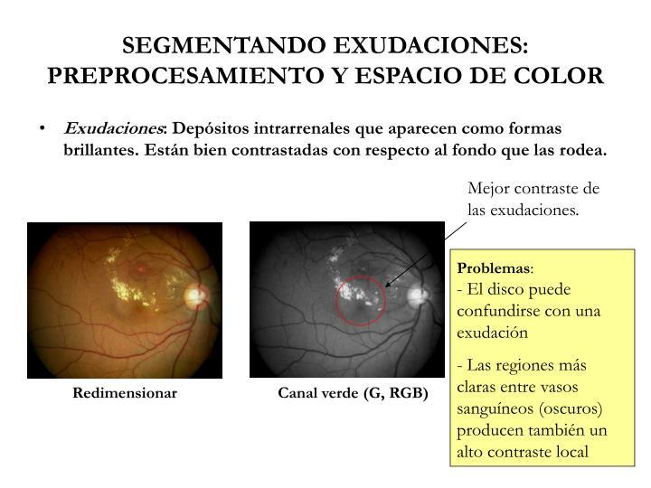 SEGMENTANDO EXUDACIONES: PREPROCESAMIENTO Y ESPACIO DE COLOR