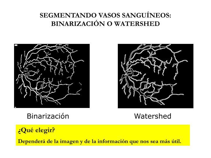 SEGMENTANDO VASOS SANGUÍNEOS: BINARIZACIÓN O WATERSHED