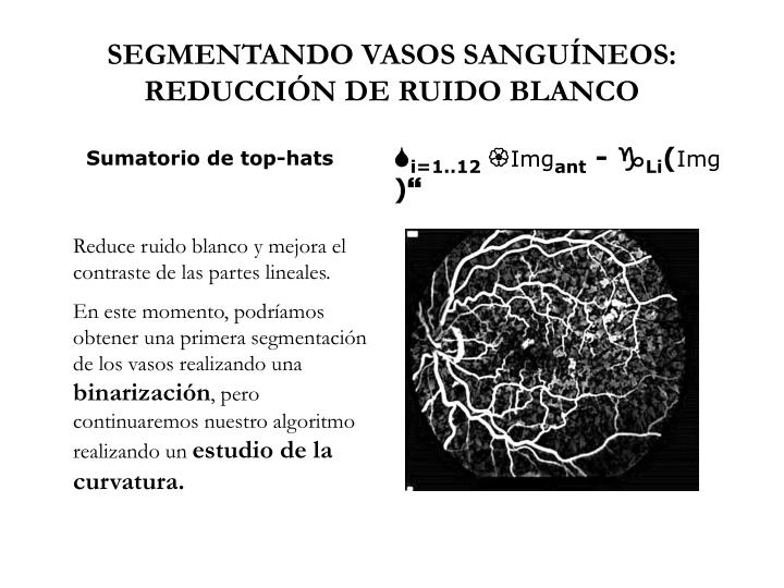 SEGMENTANDO VASOS SANGUÍNEOS: REDUCCIÓN DE RUIDO BLANCO