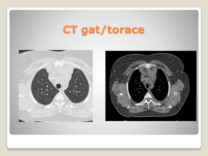 CT gat/