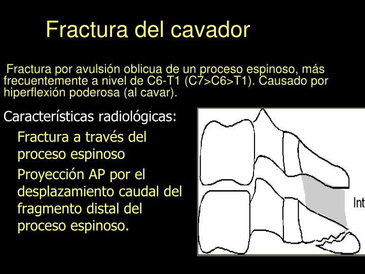 Fractura del cavador