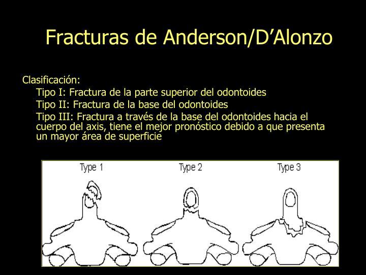 Fracturas de Anderson/D'Alonzo