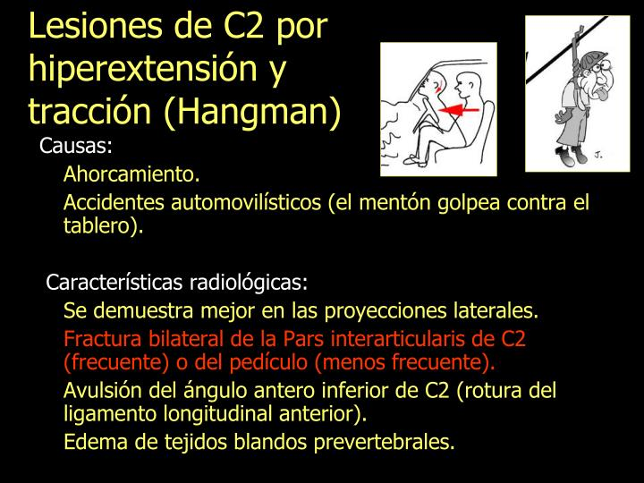 Lesiones de C2 por