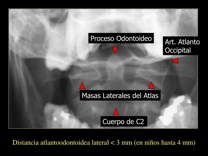 Proceso Odontoideo