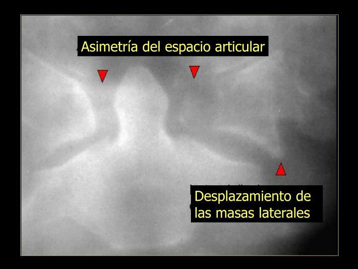 Asimetr