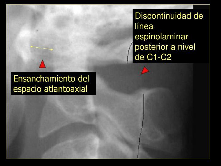 Discontinuidad de línea espinolaminar posterior a nivel de C1-C2