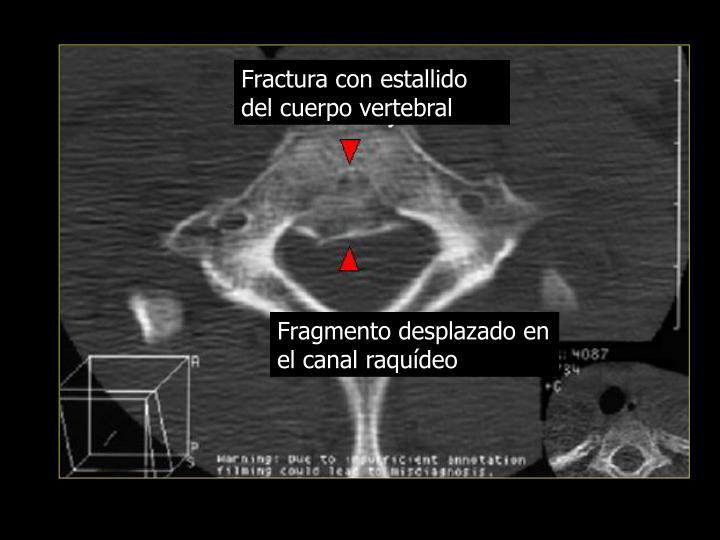 Fractura con estallido del cuerpo vertebral