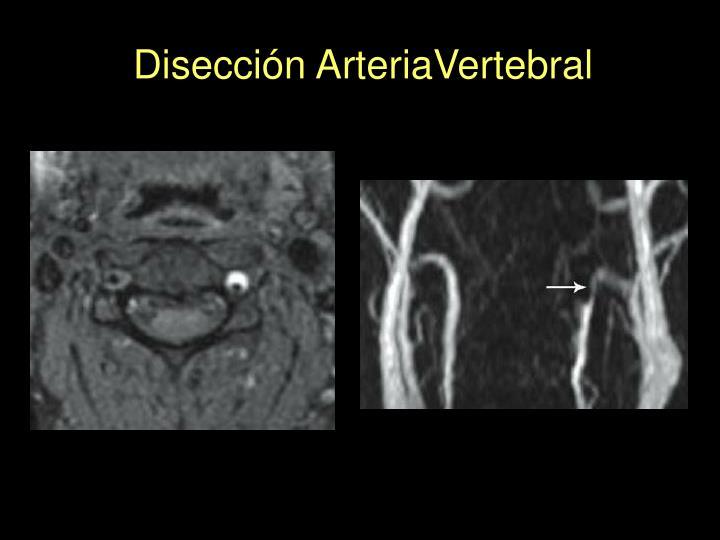 Disección ArteriaVertebral