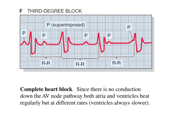 Complete heart block