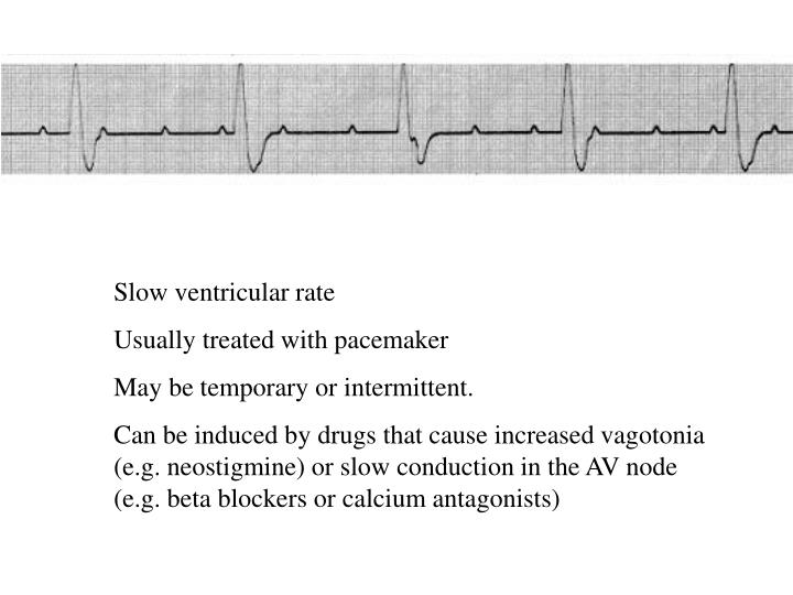 Slow ventricular rate