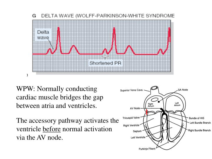WPW: Normally conducting cardiac muscle bridges the gap between atria and ventricles.
