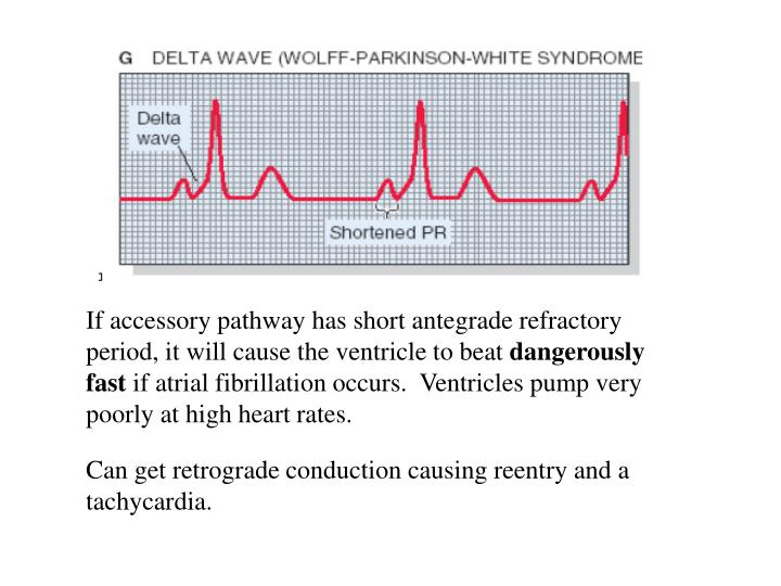 If accessory pathway has short antegrade refractory period, it will cause the ventricle to beat