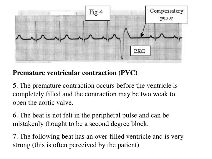 Premature ventricular contraction (PVC)
