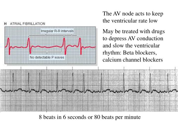 The AV node acts to keep the ventricular rate low
