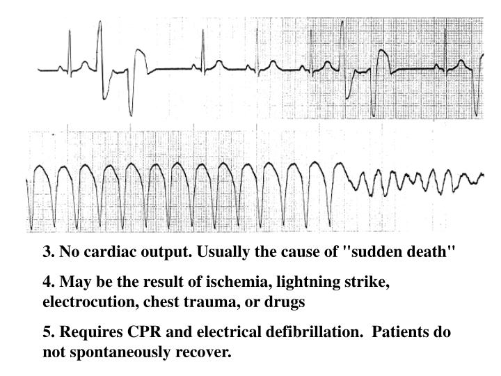 "3. No cardiac output. Usually the cause of ""sudden death"""
