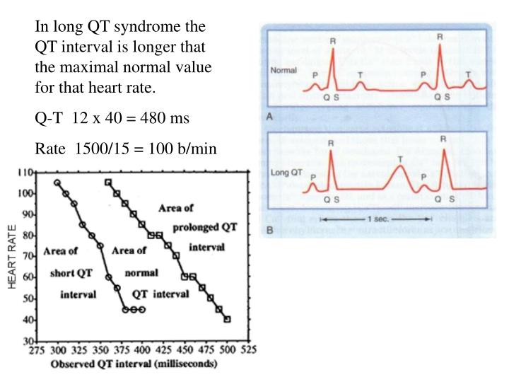 In long QT syndrome the QT interval is longer that the maximal normal value for that heart rate.