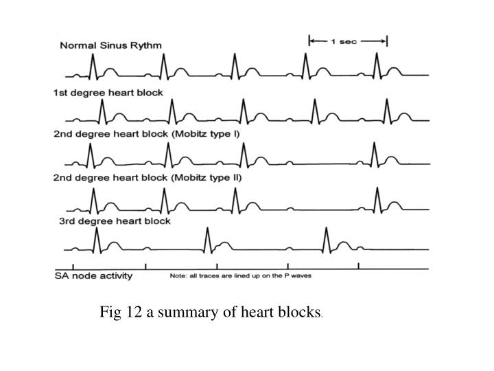 Fig 12 a summary of heart blocks