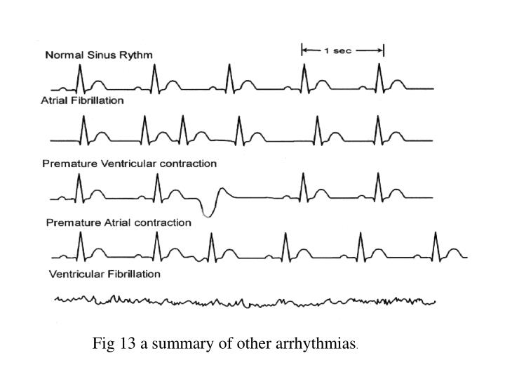 Fig 13 a summary of other arrhythmias