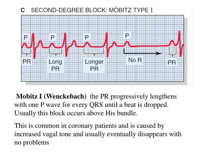 Mobitz I (Wenckebach)