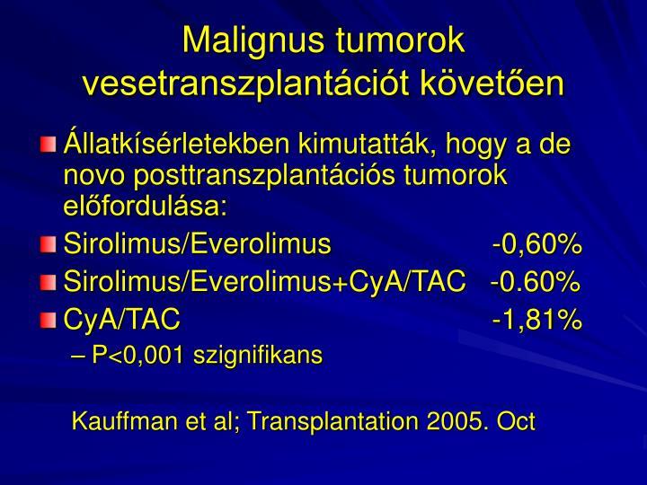 Malignus tumorok vesetranszplantációt követően