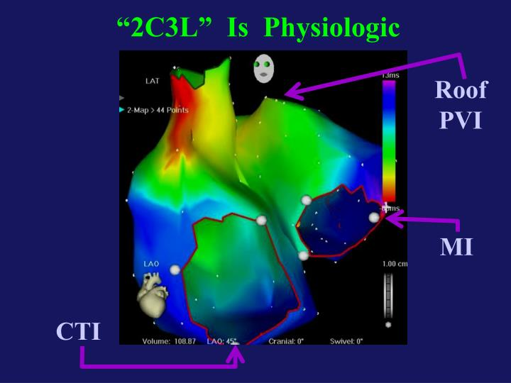 """2C3L""  Is  Physiologic"