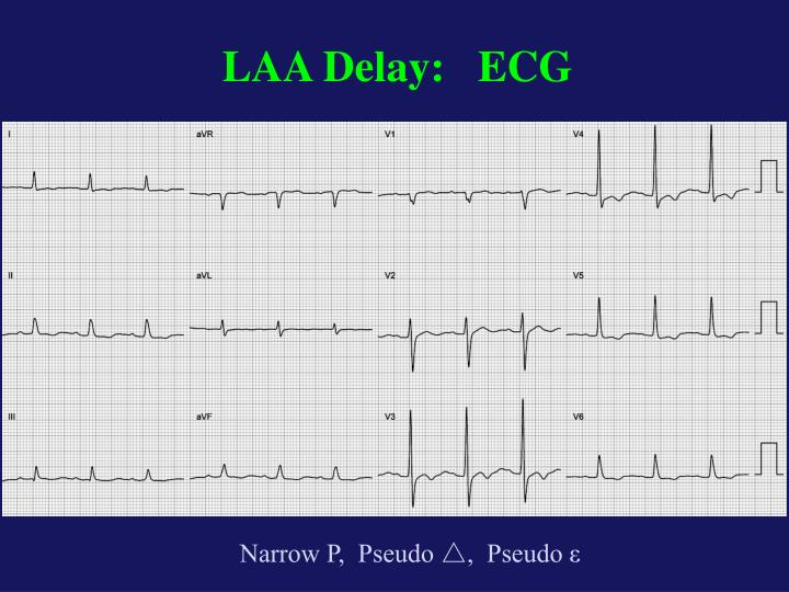 LAA Delay:   ECG