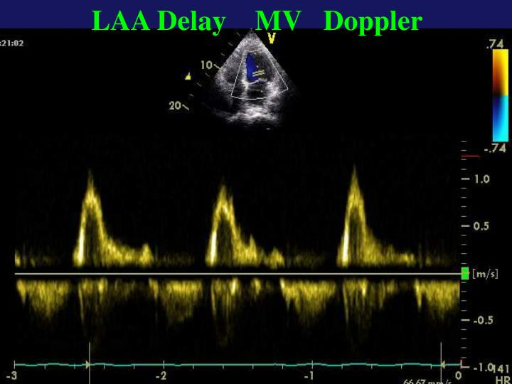 LAA Delay    MV   Doppler