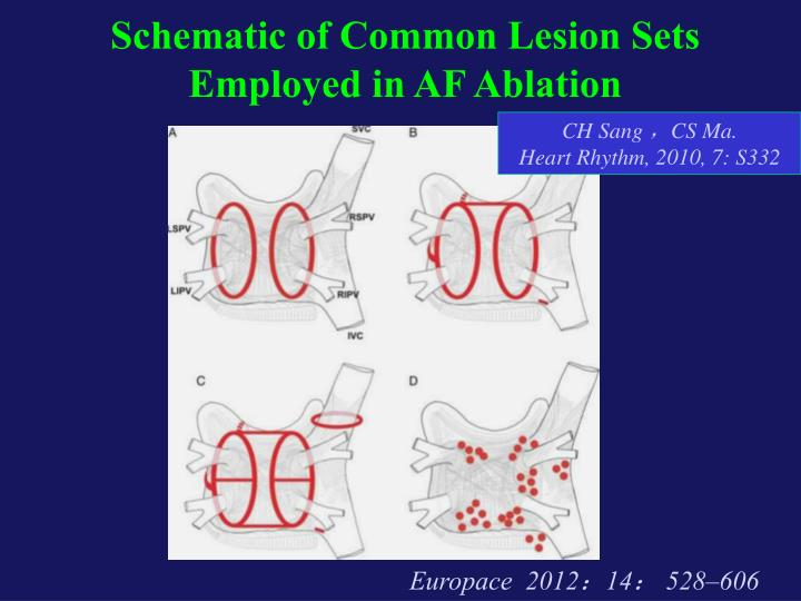 Schematic of Common Lesion Sets Employed in AF Ablation