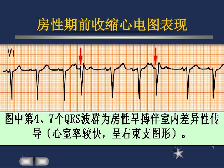房性期前收缩心电图表现