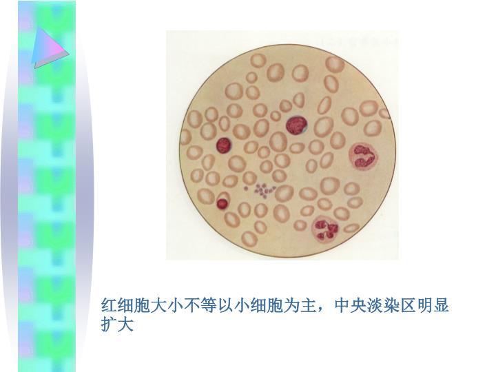 红细胞大小不等以小细胞为主,中央淡染区明显扩大