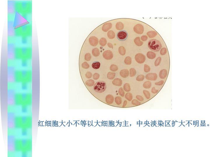 红细胞大小不等以大细胞为主,中央淡染区扩大不明显。