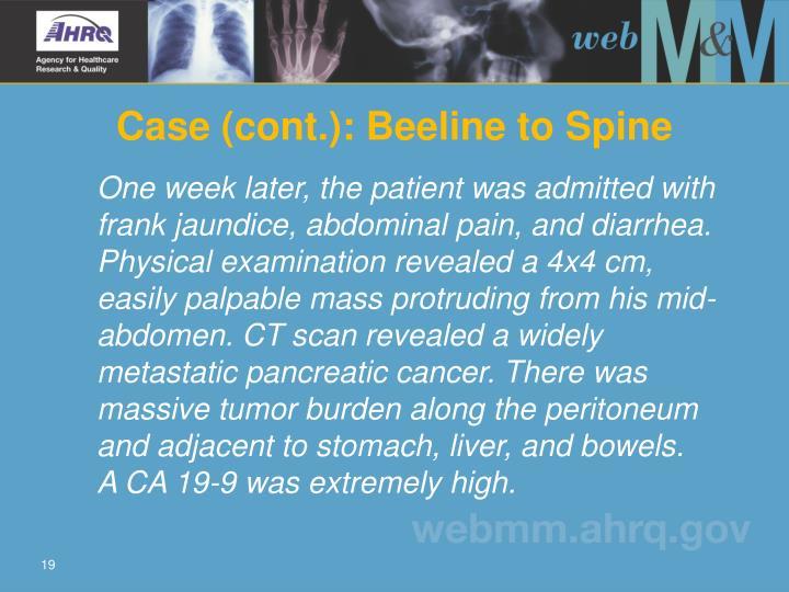 Case (cont.): Beeline to Spine