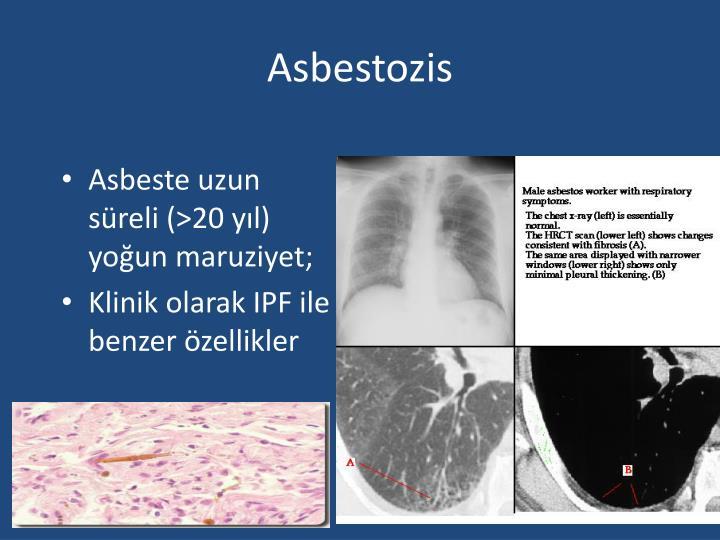 Asbestozis