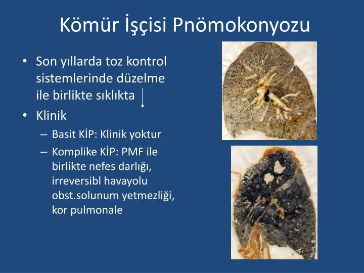 Kömür İşçisi Pnömokonyozu